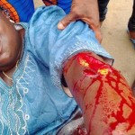 Bloody Clashes Mar APC Bayelsa Primary As Alaibe Storms Out of Venue