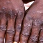Monkeypox Hits Lagos, 2 Suspected Cases Reported