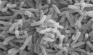 microscope image of cholera bacteria